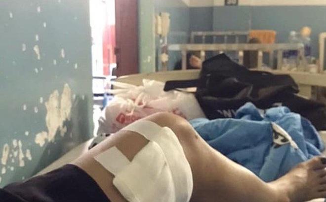 TP HCM: Nhiều người bất ngờ bị bầy chó dữ tấn công