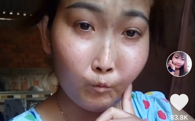 Cô gái Bến Tre mắc bệnh xơ cứng bì quay clip tiktok hút 2 triệu view: Gia cảnh khó khăn, bị trêu chọc vì gương mặt kì lạ