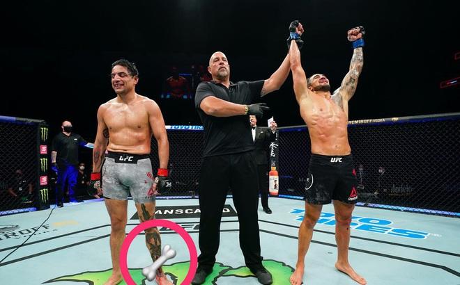 Tăng hạng cân, võ sĩ MMA dính chấn thương kinh dị