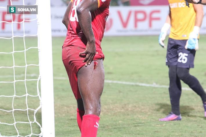 Hậu vệ châu Phi dính vết thương rợn người trong nỗ lực ngăn Hà Nội FC đua vô địch - Ảnh 3.