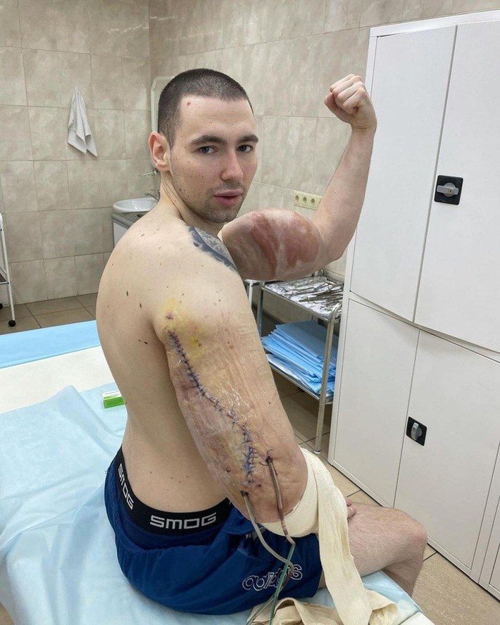 Popeye nước Nga buộc phải phẫu thuật sau khi cánh tay kinh dị bị thối vì tiêm hóa chất kích thích - Ảnh 1.