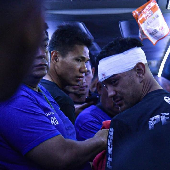 Bóng đá Indonesia lại rúng động: Cầu thủ bị CĐV ném đá vỡ đầu, thoát chết trong gang tấc - Ảnh 4.