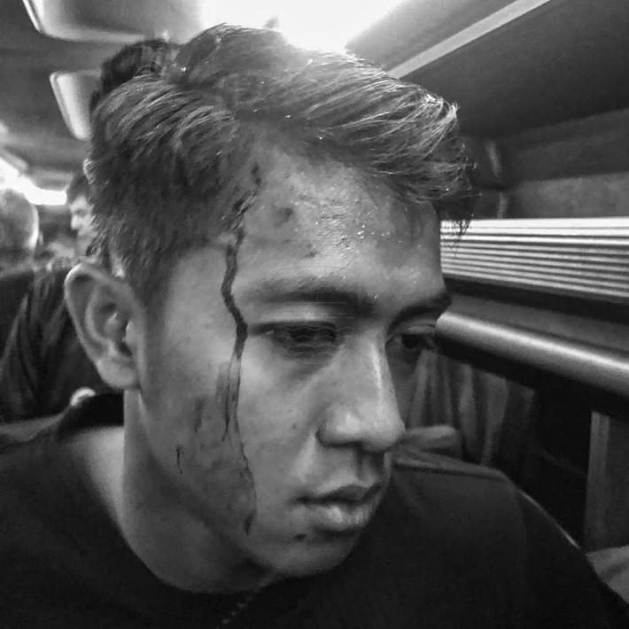 Bóng đá Indonesia lại rúng động: Cầu thủ bị CĐV ném đá vỡ đầu, thoát chết trong gang tấc - Ảnh 3.