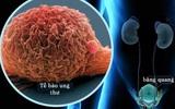 Dịch COVID-19 với bệnh nhân ung thư tiết niệu