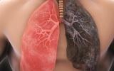 Ung thư phổi không đáng sợ nếu biết rõ nguyên nhân và cách phòng ngừa