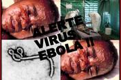 Toàn cảnh về Ebola - bệnh dịch do virus đáng sợ nhất thời đại