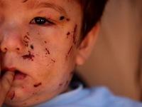20 bức ảnh ấn tượng về nội chiến Syria đoạt giải Pulitzer 2013