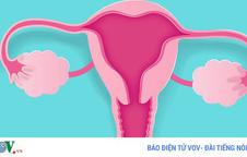 7 nguyên nhân gây ung thư buồng trứng bạn phải biết