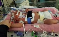 """Trẻ tử vong chỉ sau 18 ngày chào đời gây chấn động thế giới: """"Nụ hôn thần chết"""" vẫn tái diễn"""