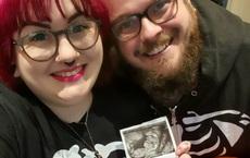 """Vừa nhìn bức ảnh siêu âm của con, cặp vợ chồng đã """"sốc"""" nặng bởi 1 chi tiết thú vị"""