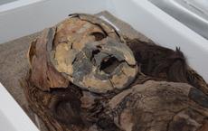 Chụp CT xác ướp lâu đời nhất thế giới: Chuyên gia hóa giải những câu hỏi từ 7000 năm trước