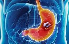 Ai có nguy cơ bị ung thư dạ dày: Nếu có một trong những yếu tố sau, cần cẩn thận!