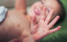 Sốt cao không hạ: BS Bệnh viện Nhi khuyến cáo có thể là dấu hiệu tay-chân-miệng nặng
