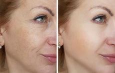 Phương thuốc 0 đồng: 6 điều kỳ diệu xảy ra khi bạn xông hơi mặt mỗi tuần một lần