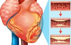 """4 dấu hiệu bệnh tim mạch vành """"kêu cứu"""", đừng bỏ qua vì có thể cướp đi tính mạng"""