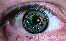 Cấy 'mắt sinh học' vào não người mù, dự án đột phá này sắp thực hiện điều Elon Musk còn chưa làm được