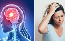 """""""Tai biến mạch máu não nháp"""": Dấu hiệu cảnh báo đột quỵ thật, nhiều người bỏ qua vì chủ quan"""