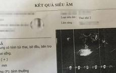 Nữ sinh lớp 8 ở Thanh Hóa phải nghỉ học vì mang thai đôi 5 tháng