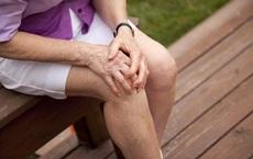 PCT Hội Loãng xương: Tiếng kêu lục cục của khớp dấu hiệu sớm cảnh báo căn bệnh gây tàn phế