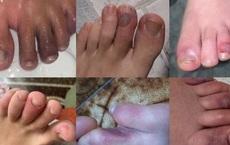 Lý giải triệu chứng 'ngón chân co cứng' xuất hiện ở bệnh nhân mắc COVID-19
