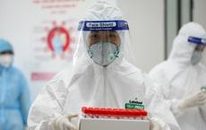 Bộ Y tế làm rõ vấn đề xét nghiệm SARS-CoV-2 khi đi lại: Chỉ những trường hợp sau cần xét nghiệm