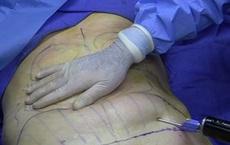 Từ vụ người phụ nữ tử vong sau hút mỡ bụng ở TP HCM: Chuyên gia khuyến cáo những điều cần lưu ý khi phẫu thuật thẩm mỹ