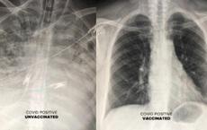 Ảnh chụp X-quang phổi cho thấy tác dụng tuyệt vời của vaccine Covid-19