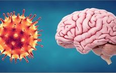 Phát hiện thêm tác động nguy hiểm của COVID-19 với não