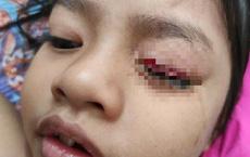 Hoảng hồn bé gái 6 tuổi suýt mù một bên mắt vì đồ vật quen thuộc nhà nào cũng có