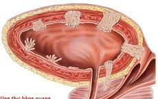 Các yếu tố nguy cơ gây ung thư bàng quang