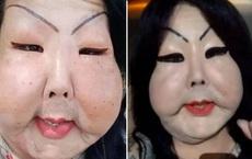 Đang bình thường, người phụ nữ bị biến dạng mặt kinh hoàng vì thực hiện thủ thuật làm đẹp nhiều cô gái ưa chuộng