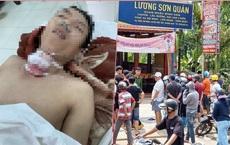 Án mạng kinh hoàng do ghen tuông tại quán nhậu Lương Sơn: CA đang giám sát nghi can tại bệnh viện đề phòng tự tử