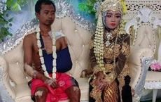 Bức ảnh chú rể mặt buồn thiu, toàn thân đầy thương tích tại đám cưới gây bão MXH, câu chuyện phía sau khiến ai cũng xúc động