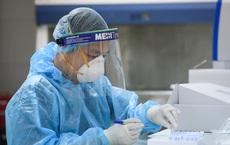 Bộ Y tế: Xây dựng kịch bản cho tình huống 30.000 ca mắc Covid-19