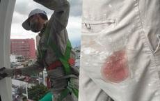 Thợ sơn kể lại thời điểm bị kẻ lạ bắn nhiều phát đạn khi đang làm việc trên tháp chuông
