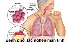 Phòng ngừa nguy cơ cho người bệnh phổi tắc nghẽn mạn tính trong dịch COVID-19