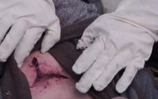 Vụ án chấn động thời Tống: Sử dụng ruồi phá án, chuyên gia pháp y khiến sát nhân 'hành động lạ' tại hiện trường