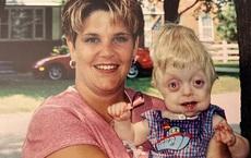 Bé trai sinh ra với ngoại hình kỳ lạ, bác sĩ khẳng định khó sống sót nhưng cuộc đời và diện mạo 17 năm sau khiến ai cũng kinh ngạc