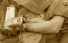 Người phụ nữ cùng máy xay thịt nuốt gần hết bàn tay đến bệnh viện
