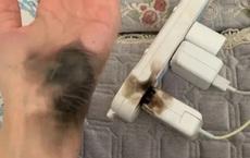 Đeo thứ tưởng chừng vô hại, người phụ nữ suýt mất bàn tay khi cắm điện