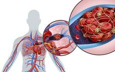 Bệnh COVID-19 tấn công những bộ phận nào của cơ thể?