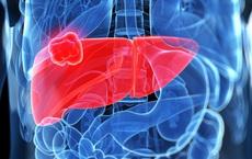 Ung thư gan: Sẽ không chết sớm nếu hiểu đúng về cách chữa trị