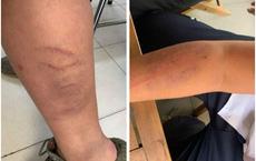 Bé trai lớp 7 ở Hà Nội tố bị bố đẻ đánh thâm tím trên cơ thể vì viết chữ xấu