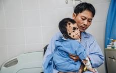 """Nỗi sợ lớn nhất của người cha sinh ra con mắc chứng bệnh kỳ lạ """"như người vượn"""""""