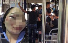 Nữ nhân viên xe buýt tố bị khách đánh nhập viện đúng ngày 20/10