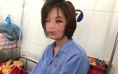 Nữ phụ xe buýt bị hành hung cảm thấy tổn thương vì bị đánh vào ngày 20/10