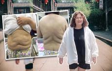 """Biến mất 2 năm, hút 8 lít mỡ ra khỏi cơ thể và hình ảnh hiện tại gây sốc của """"hot girl ngàn cân"""""""