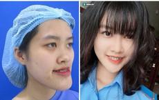 """Bị chê """"mặt rắn"""", nữ sinh HV Cảnh sát chi 300 triệu quyết tâm lột xác và thành quả bất ngờ"""