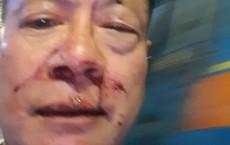 Việt kiều Đức gốc Hoa vô cớ bị nhóm thanh niên đánh trong quán karaoke ở Sài Gòn