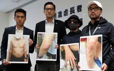 Cảnh sát Hồng Kông tra tấn cụ ông trong bệnh viện